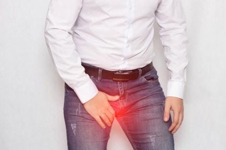 Cosa si intende per varicocele maschile e come si cura - Dr ...
