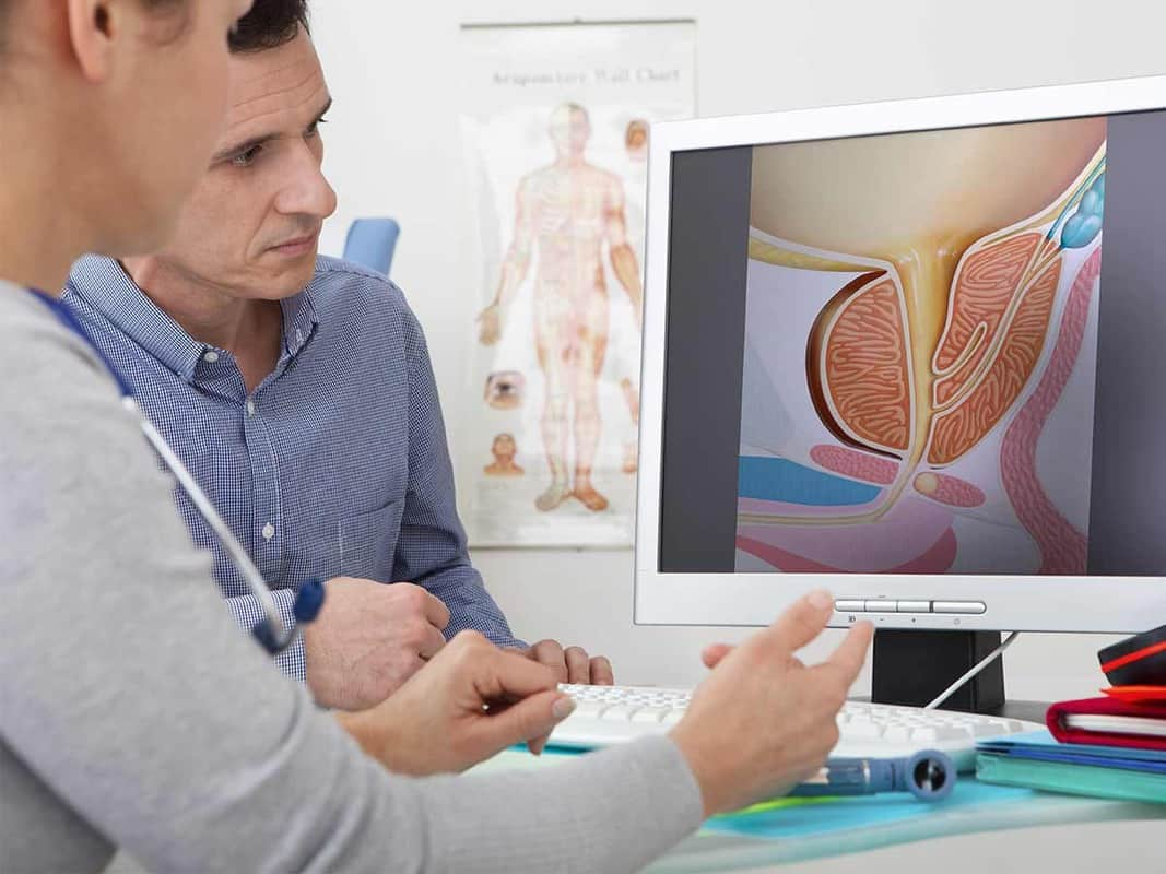 visita andrologica a roma linfangite sclerosante
